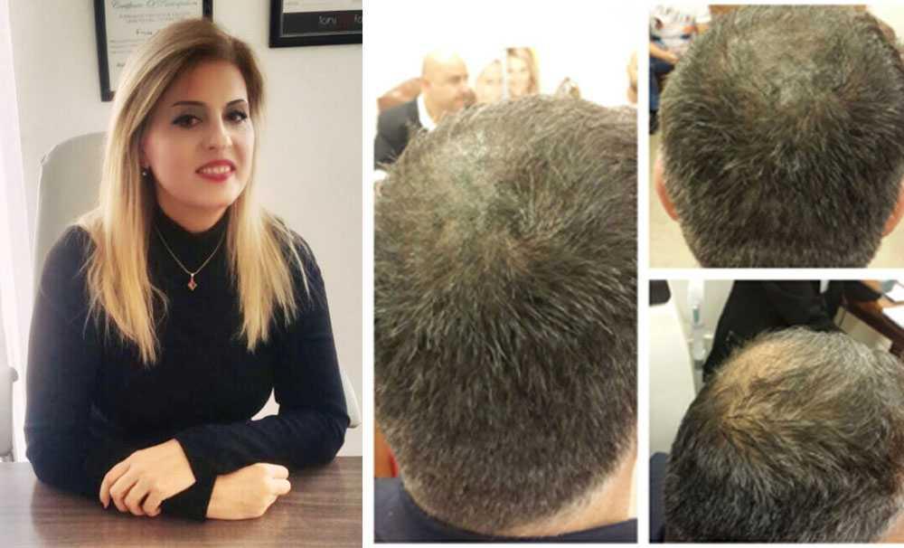 Saç Ekimi Yerine Saç Simülasyonu